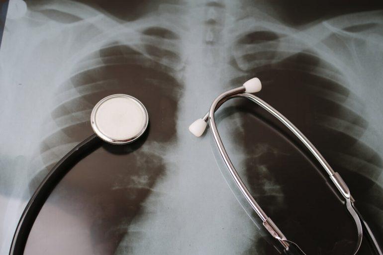 気管支喘息の診断の検査について