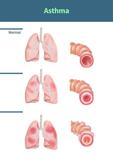 喘息が悪くなる原因